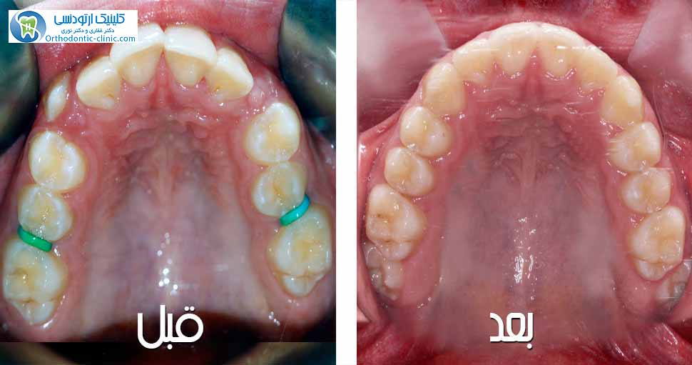 Overjet and Class II Malocclusion